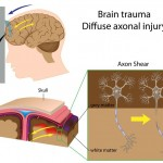 Brain Injury: What is a Diffuse Axonal Injury?